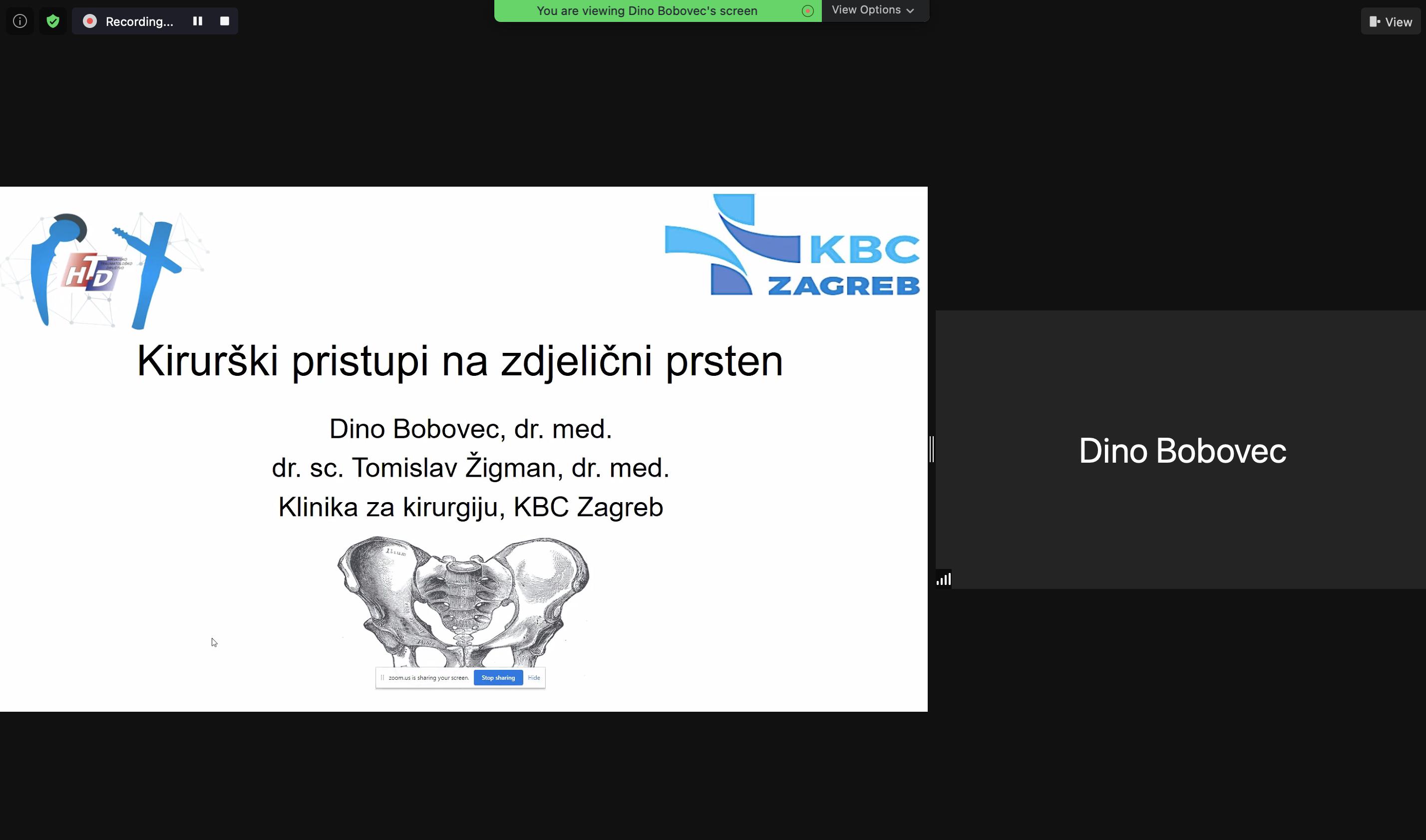 """""""Izrada smjernica Hrvatskog traumatološkog društva – prijelomi zdjelice i acetabuluma"""" 16.02.2021."""